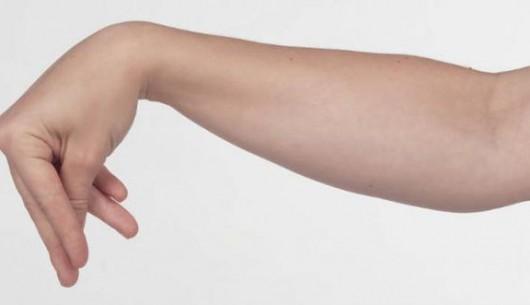 Chẩn đoán và điều trị suy tuyến cận giáp