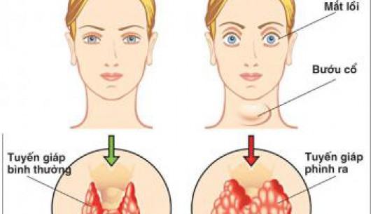 Những hệ lụy do thiếu i-ốt