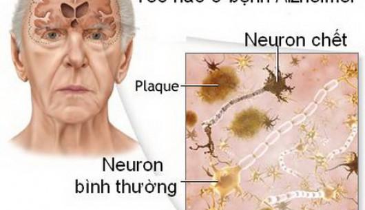 Đối phó với chứng sa sút trí tuệ ở người cao tuổi