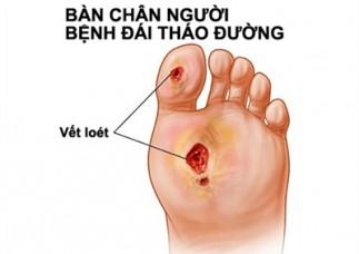 Chăm sóc bàn chân cho người đái tháo đường