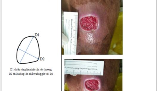 Giải pháp giúp làm lành các vết thương nhiễm trùng sau mổ