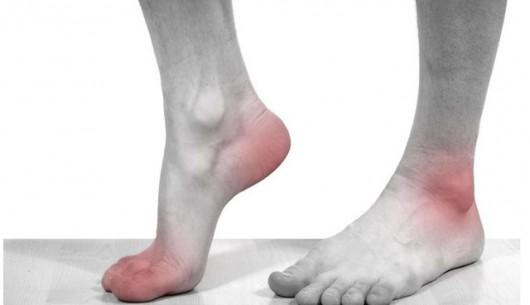 Phần lớn người bệnh bị gout mạn tính nhưng không biết