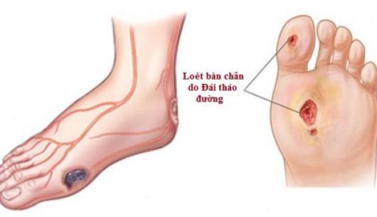 Cảnh báo dấu hiệu tê bì chân tay ở bệnh nhân Đái tháo đường