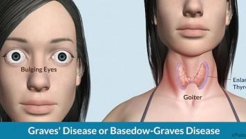 Tại sao bệnh Basedow lại gây lồi mắt