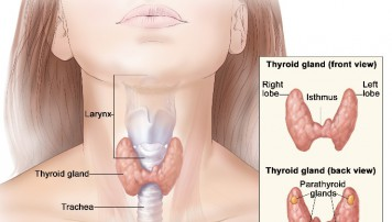 Tìm hiểu về bệnh viêm tuyến giáp cấp tính