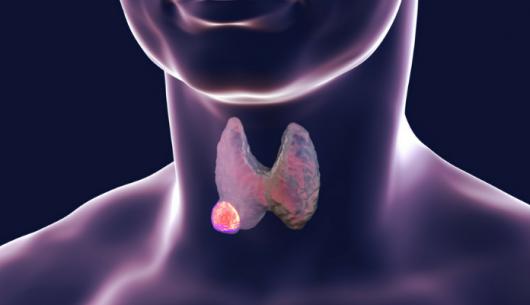 Bệnh đang phổ biến: Ung thư tuyến giáp