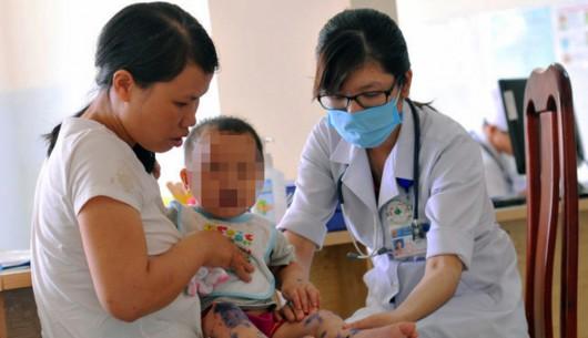 Chưa hết dịch sốt xuất huyết lại đến dịch bệnh chân tay miệng