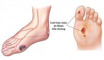 Chăm sóc bàn chân ở người bệnh đái tháo đường