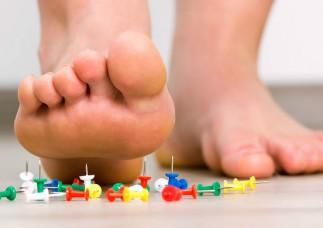 Viêm cân cơ gan bàn chân bệnh dễ bỏ qua!