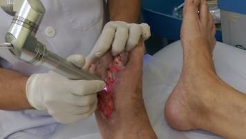 Công nghệ mới chữa lành vết thương không dùng kháng sinh