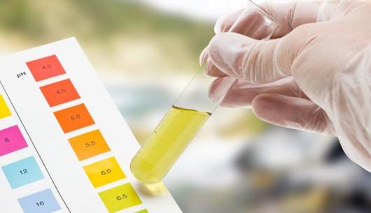 Xét nghiệm nước tiểu phát hiện ung thư