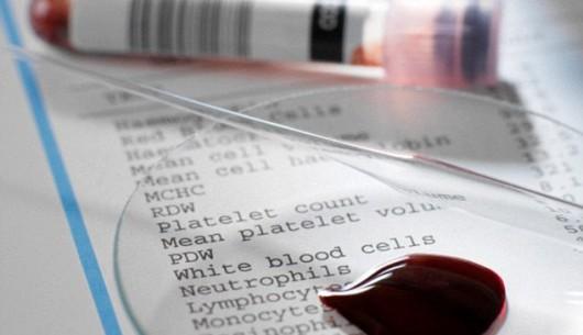 Vi rút HIV sống được bao lâu khi ở ngoài cơ thể? Chia sẻ